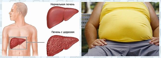 Увеличение живота при циррозе