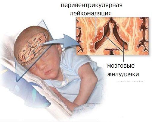 Патология мозга новорожденного