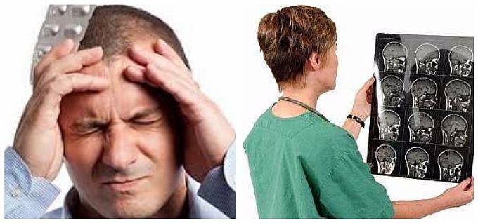 Боли при отеки мозга