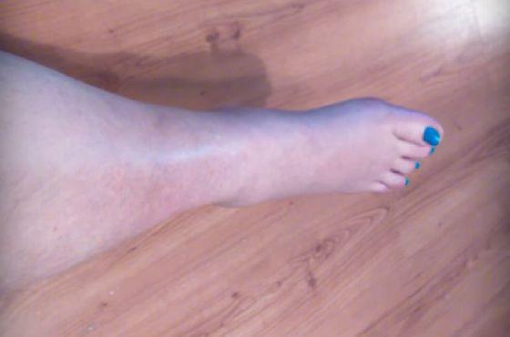 Отекает нога после перелома