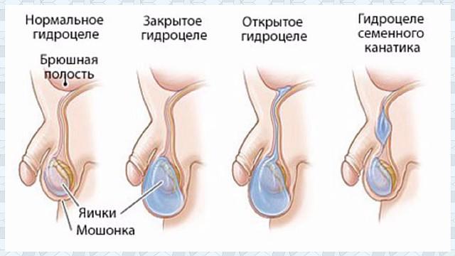 Диагностика гидроцеле