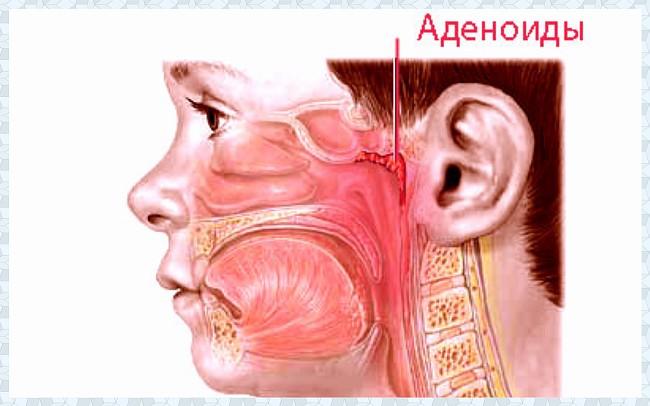 Аденоиды: причины, симптомы, лечение без операции