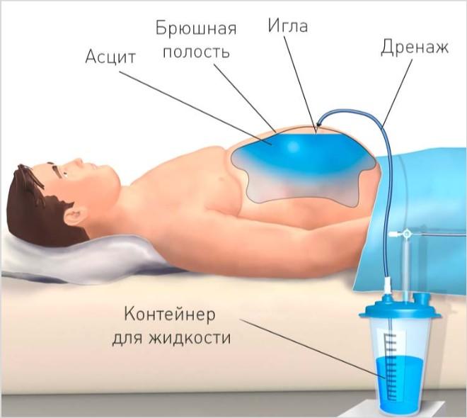 Свободная жидкость в брюшной полости на УЗИ: что это, причины скопления