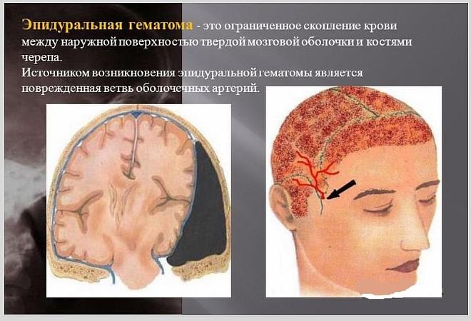 Чем опасны эпидуральные гематомы