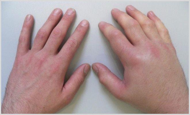 Опух лимфоузел - что делать и как лечить