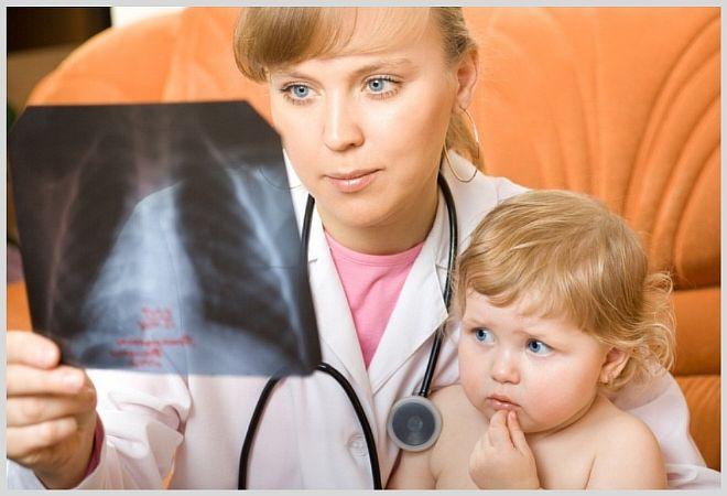 Что нужно знать об отеке в легких у детей