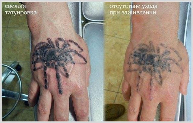 Отек после татуировки на ноге