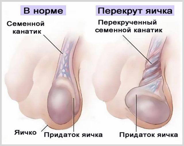 Что делать, если болит и опухло левое яичко