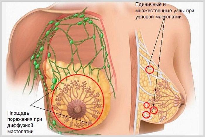 Опухоли молочной железы доброкачественного характера